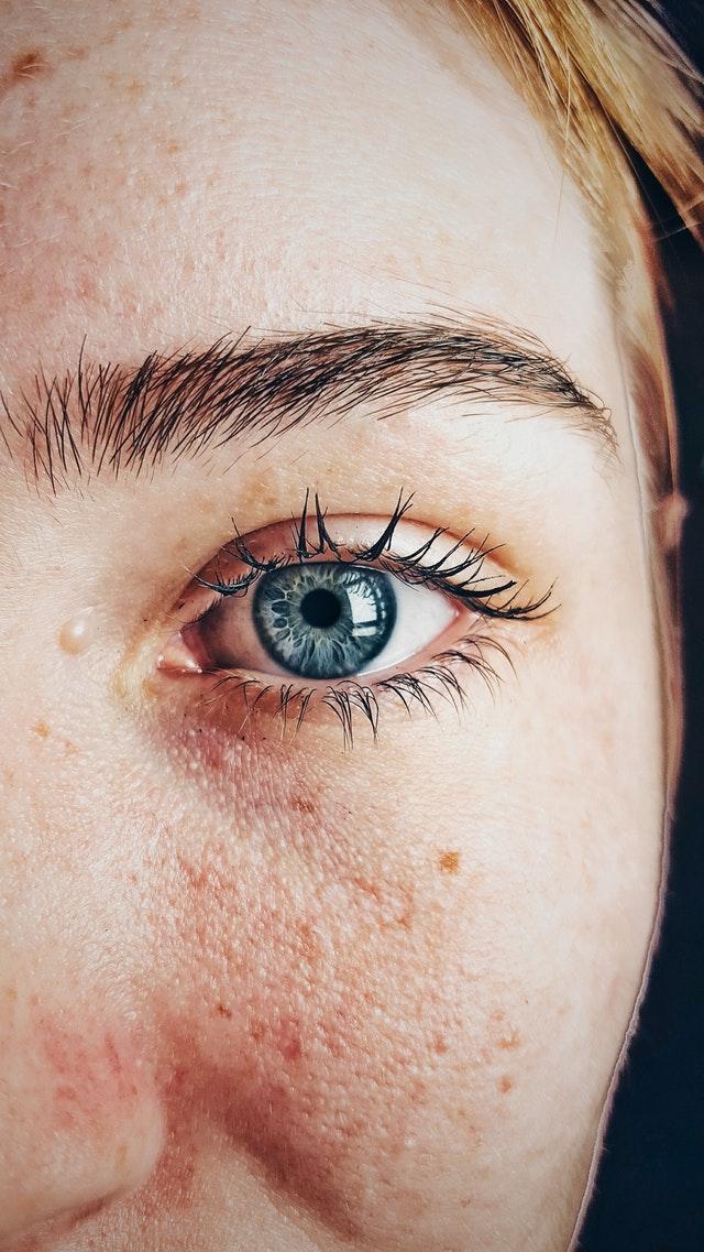 Kosmetická Poradna: Rozšířené Póry